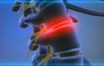 Болезнь цивилизации, или как избавиться от боли в спине