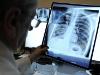 В Челябинской области снизилась заболеваемость туберкулезом
