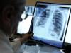 Новое оборудование для лучевой диагностики установят в южноуральских больницах