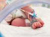 Врачи США выходили новорожденную весом 245 граммов
