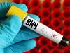 Челябинская область попала в топ регионов, где выросла заболеваемость ВИЧ